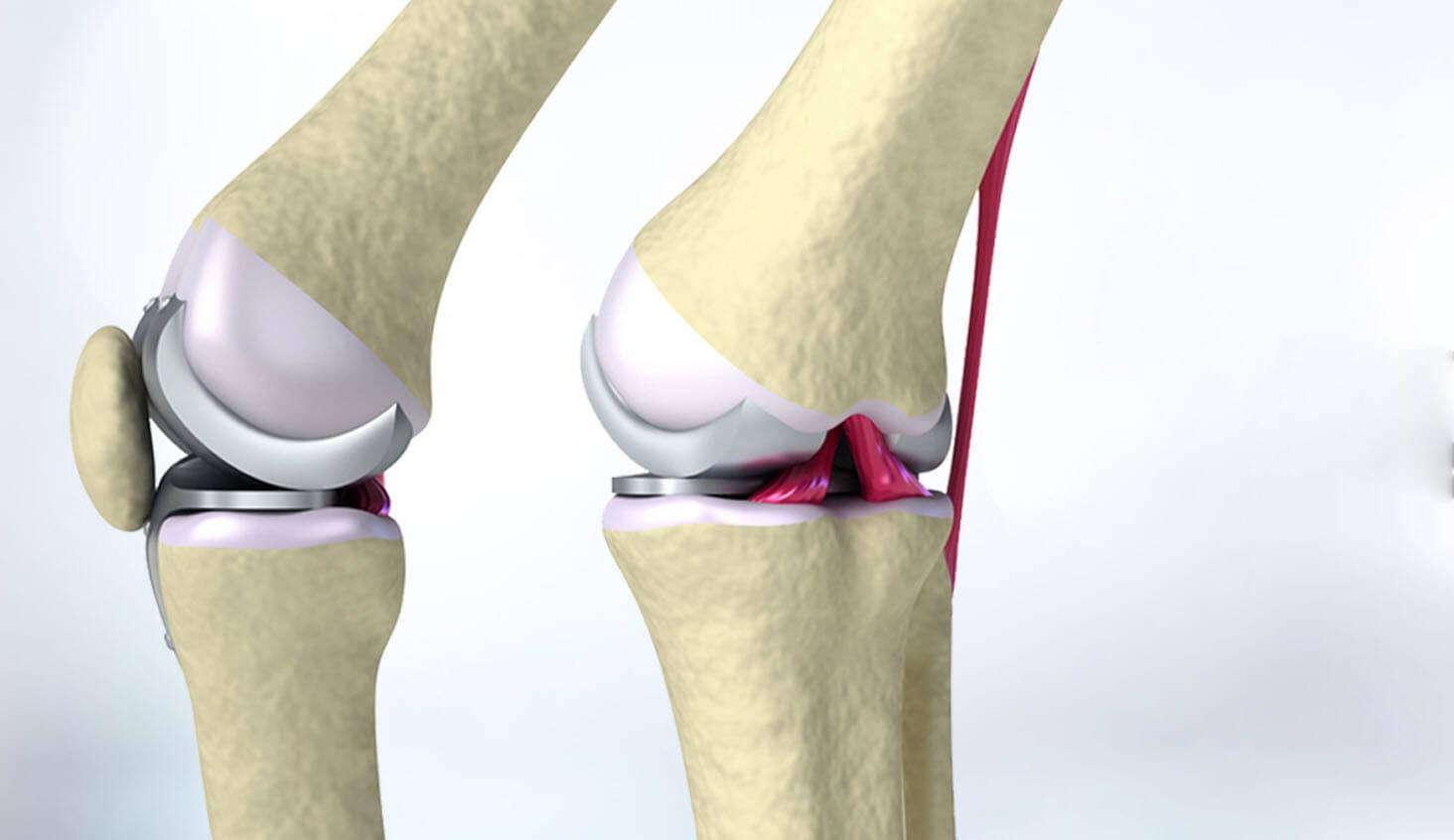 Diz ve Eklem Protezi